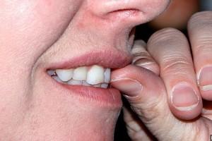 como dejar de comerse las uñas