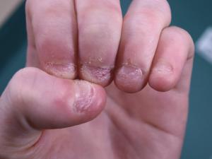 como dejar de morderse las uñas