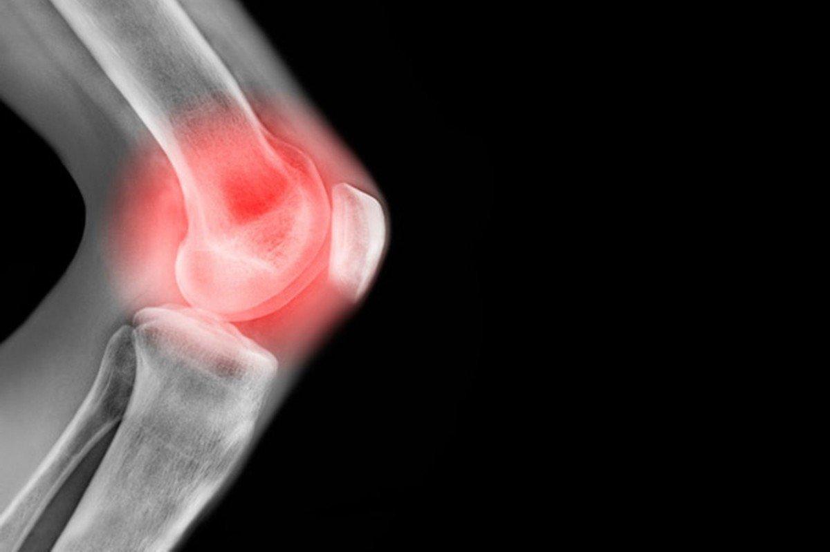 Por qué duele la parte derecha de los riñones a los hombres