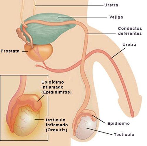 dolor de testículos - Dejar.info