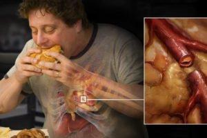 como dejar obesidad